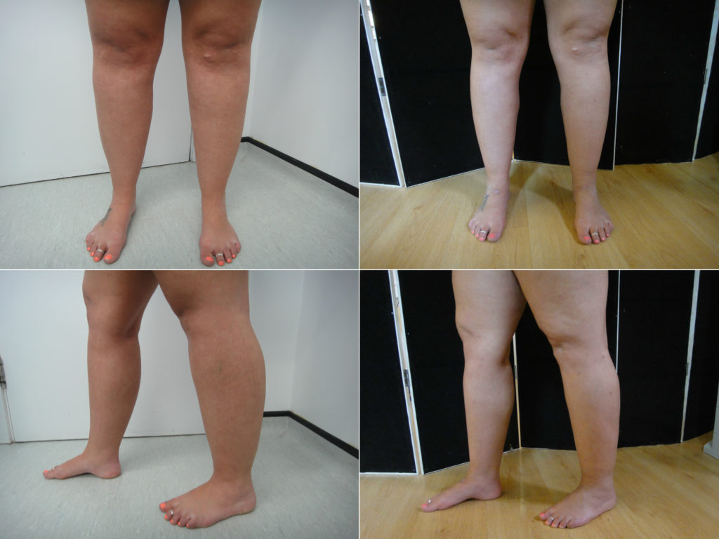 Lipoedema treatment - Amanda   Dr Puneet GuptaDr Puneet Gupta